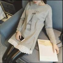 新款韩版孕妇加绒打底衫蕾丝中长款卫衣上衣加厚孕妇连衣裙